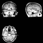 Zdjęcie_Niedoceniania plastyczność mózgu